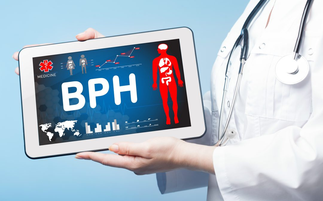 Why TULSA is the Best Way to Treat BPH