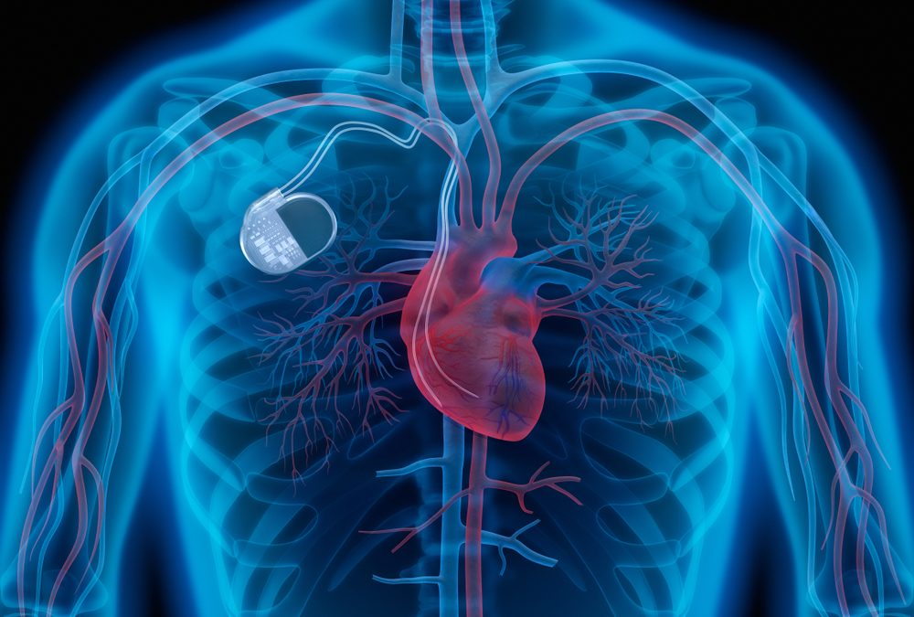 Ask Your Doctor About MRI-Compatible Pacemakers